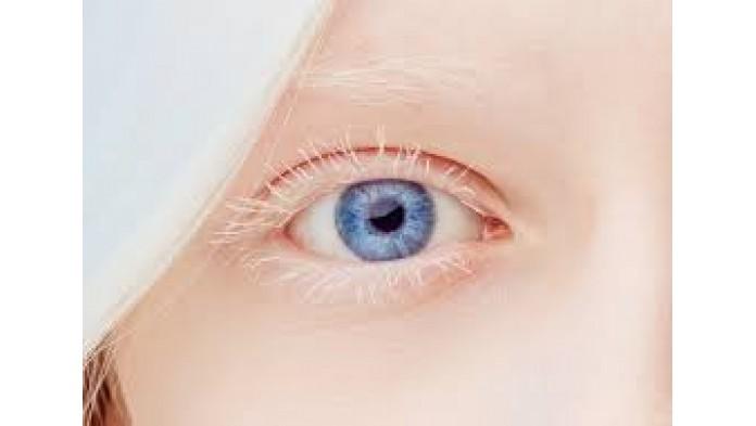 Линзы и альбинизм